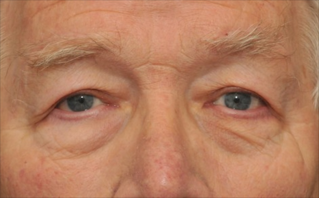 Ptosis Of The Eye - wowkeyword.com