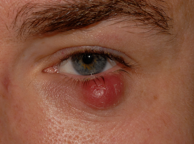how to stop a stye from swelling