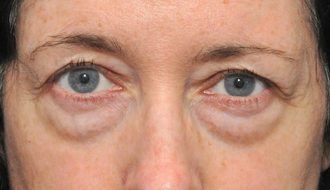 Cosmetic Eyelid Surgery Eyelid Surgeon Watery Eyes