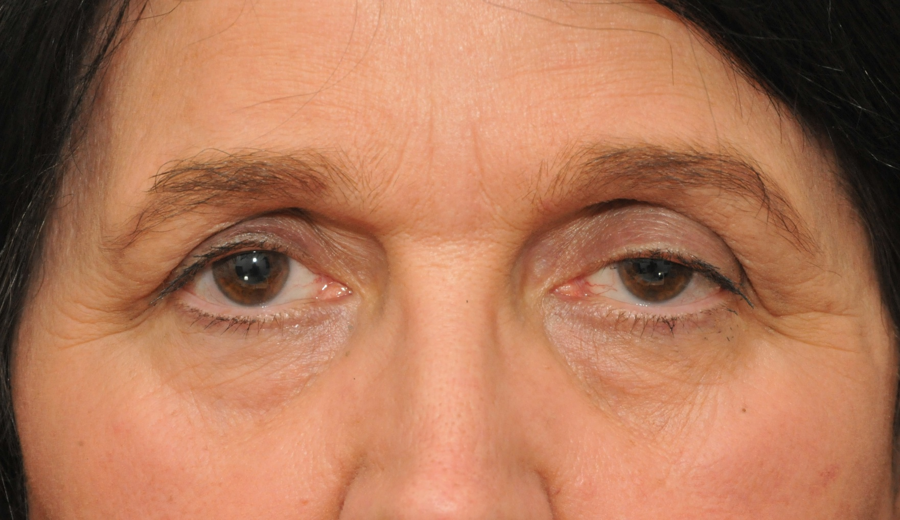 Droopy Eyelid Treatment | Droopy Eyelid Surgery | Ptosis ...