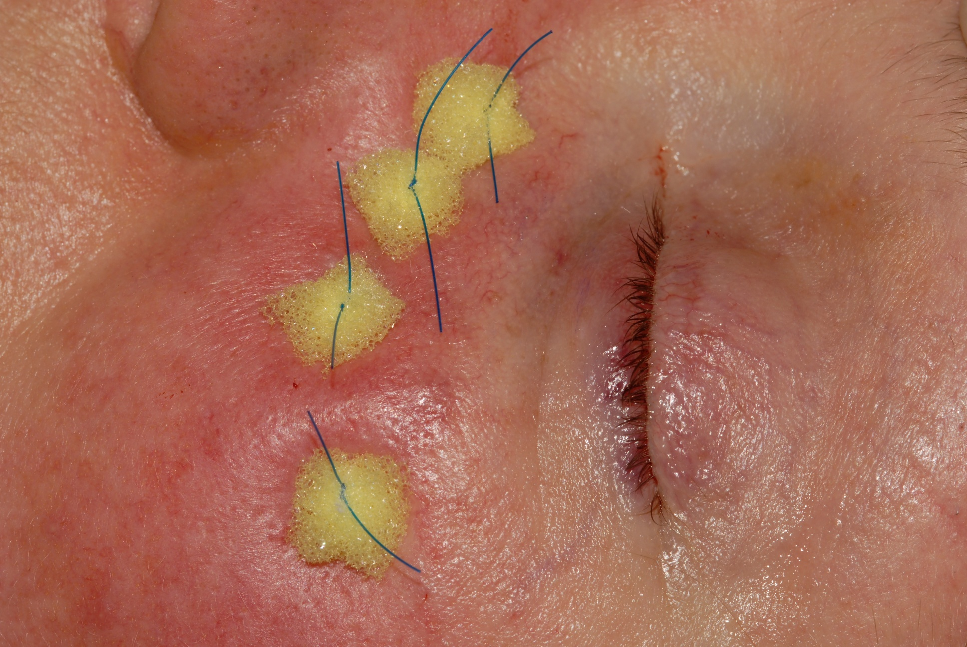 Dry Socket With Stitches