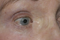 The appearance 3 months following oculoplastic reconstruction using a skin graft from the upper inner arm