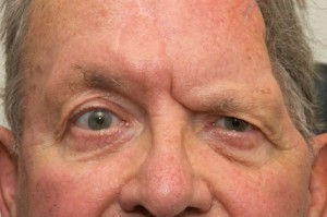 Brow-lift-in-facial-palsy-patient-360-300x199