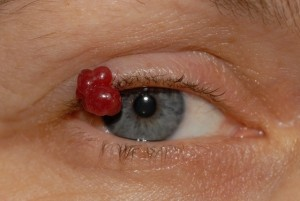 Pyogenic-granuloma-1