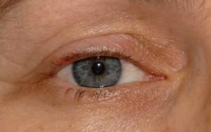 Pyogenic-granuloma-after-treatment-3