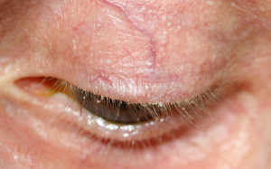 Anterior Blepharitis