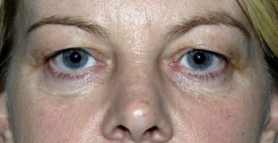 eyelid-lift-preop-pt-1-e1364224773216