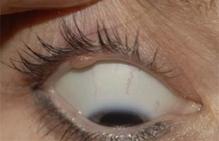 eyelid-lump-preop-pt-2-e1366910712175