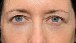 eyelidsurgery4