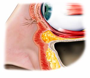 eyelidsurgery6
