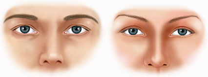 Typical male versus female brow shapes