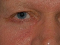 The appearance of the eyelid 4 months following surgery