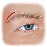 Wound Above Eyebrow Illustration