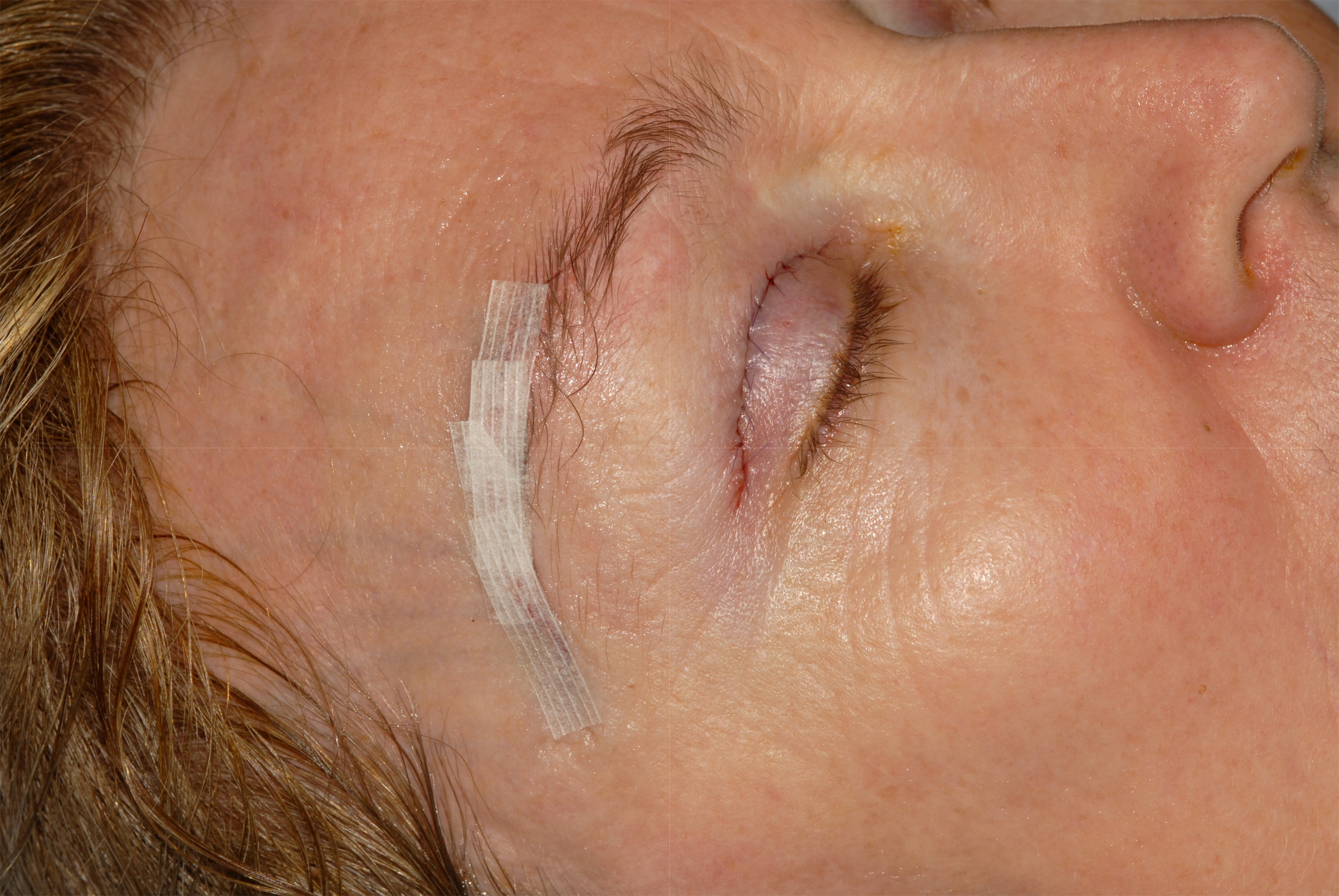 Brow Lift Surgery Anti Wrinkle Injections Brow Lift Surgeon