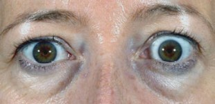 thyroid-eye-disease-preop-pt-1-e1366319030208