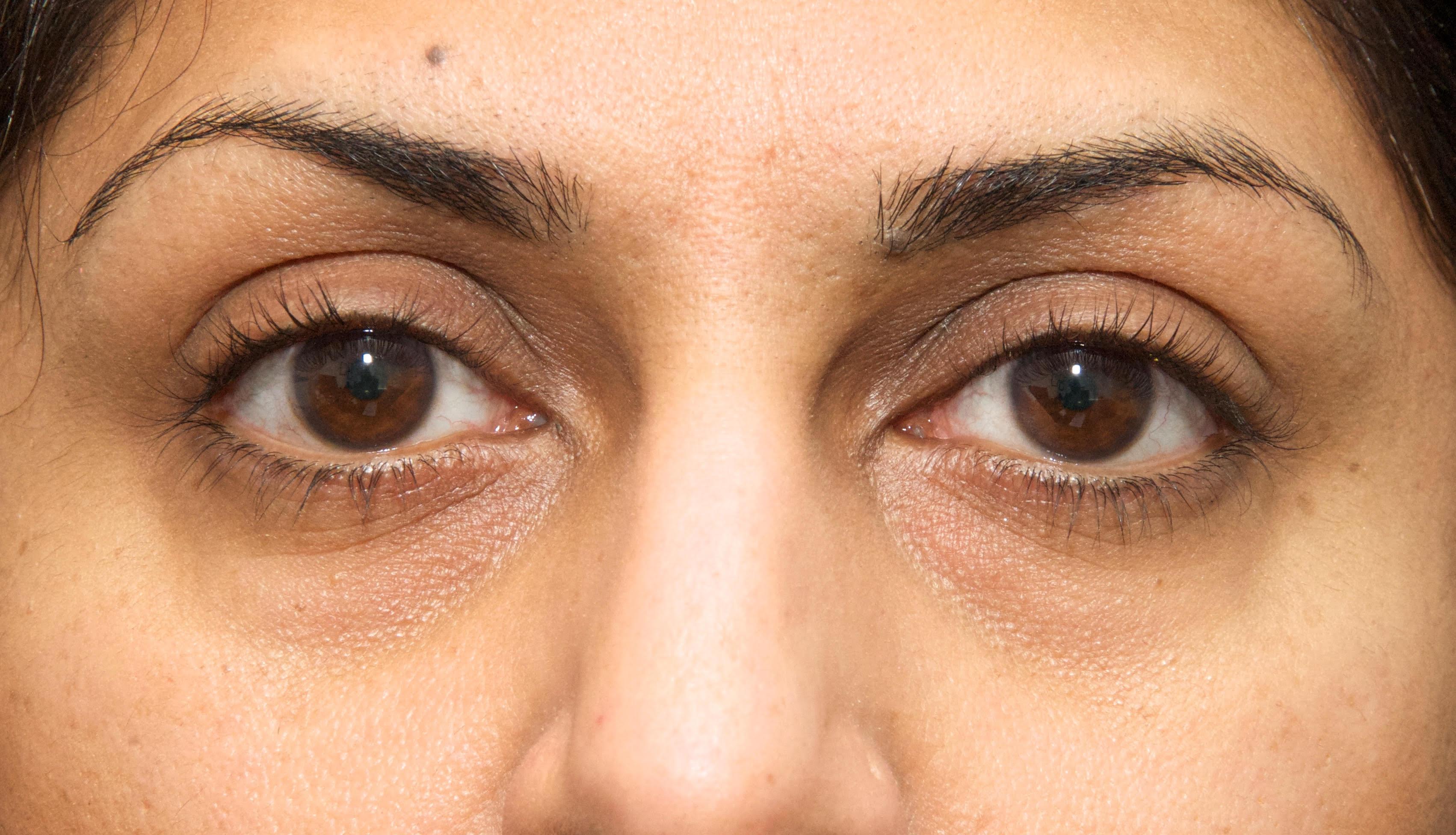 eyelid surgery1