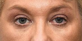 cosmetic eyelid surgery eyelid surgeon watery eyes treatment
