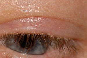 Crusts/scales along the base of the eyelashes
