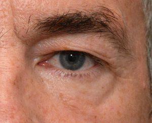 eyelidsurgery2