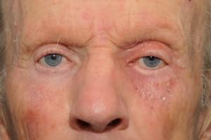 Allergic-dermatitis-before-steroid-24555