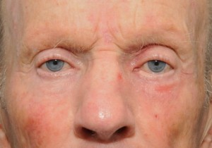 Allergic-dermatitis-following-steroid-24553