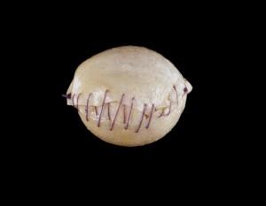 Baseball-implant1