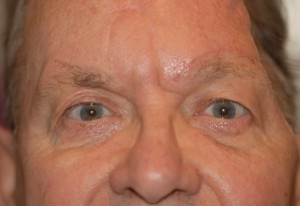 Brow-lift-in-facial-palsy-patient-359-300x206