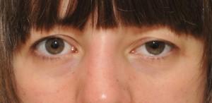 droopyeyelid1