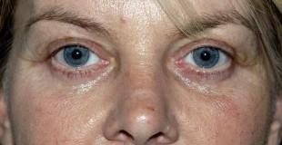 eyelid-lift-postop-pt-1-e1364224832357