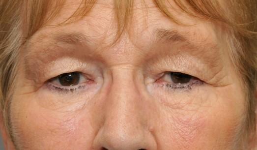 eyelid-lift-preop-pt-1-e1364224773216
