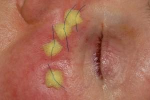 eyelidsurgery7