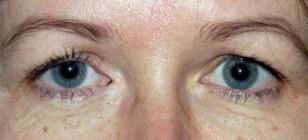 lester-jones-tube-surgery-preop-pt-1