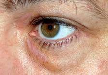 p-aft-eye-7