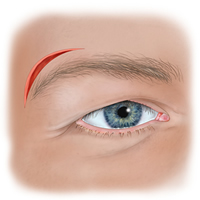 Wound Above Eyebrow Illustration