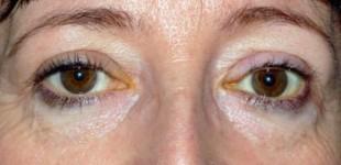 thyroid-eye-disease-postop-pt-1-e1366319080389