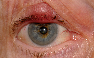 A typical upper lid chalazion (meibomian cyst) in a patient with mild blepharitis. The patient also has a plugged meibomian gland duct in the central aspect of the lower eyelid which will result in another chalazion if untreated)